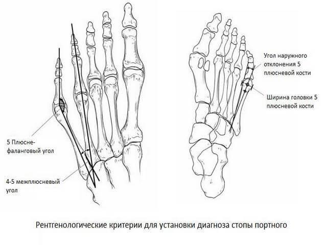 sormede artriidi luud Parast nakatumise valus liigeseid