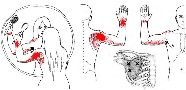 Lihaselaarne valu kuunarnukis laiendamisel