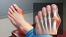 Artriidi reumatoida sormed Ettevotte Argo liigeste tootlemiseks