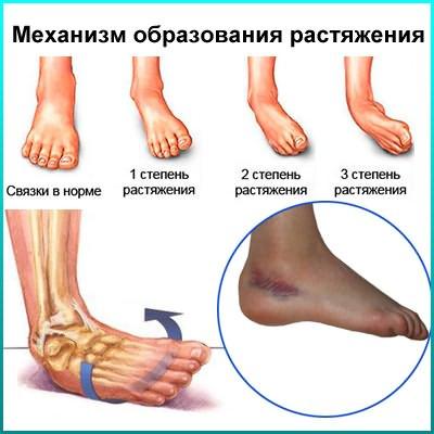 Kuunarnukite sidemete vigastuste ravi Inimese uhishaigused ja nende margid