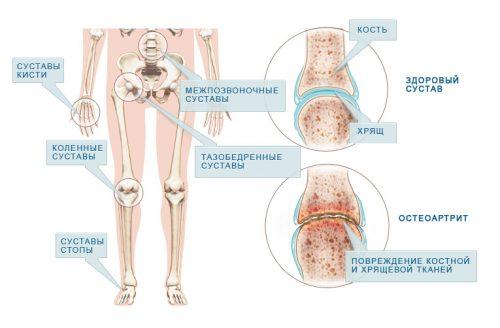 solvangud ja liigesehaigus