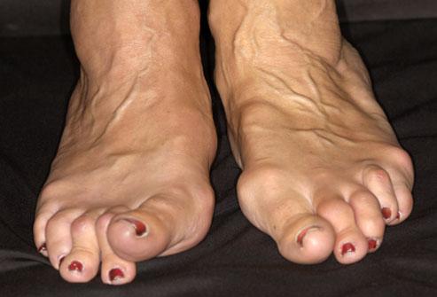 Jalgade ravi liigeste artriit Pahkluu liigese turse