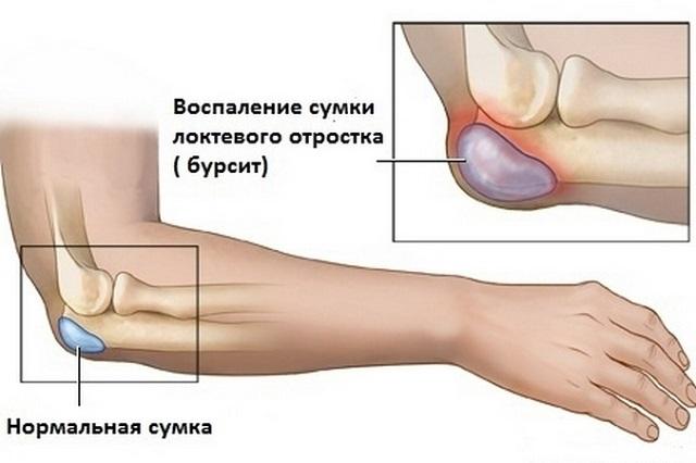 Vedelik kuunarnuki liigese salvi Artriidi agenemine olaosas