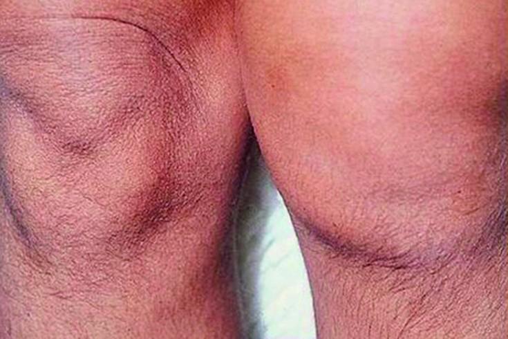 Salv ja geelid osteokondroosi ravis Valu kate liigestes raskuse tostmisel
