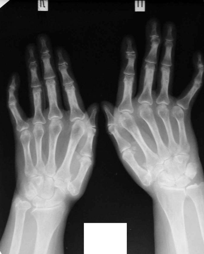 sormede artriidi luud Tablett osteokondroos