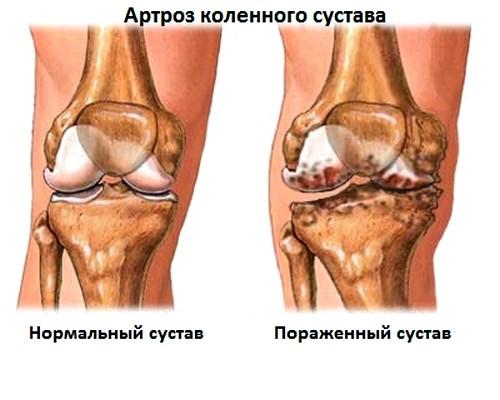 Millised tooted on liigeste artroosis kahjulikud Luu artroosi ravi