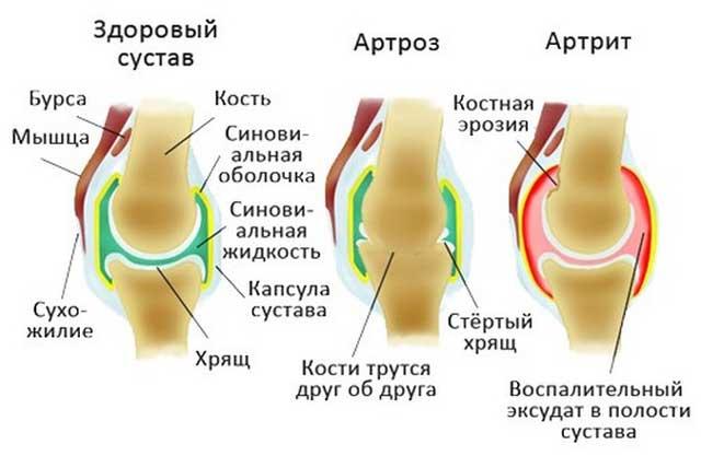Artroosi nagu
