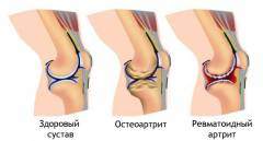 Arthroosi jalga 2 kraadi ravi