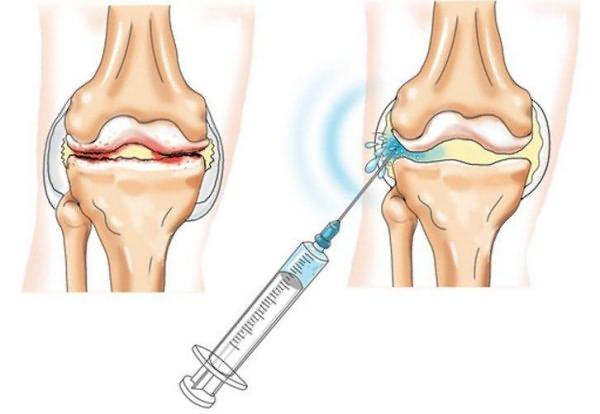 Osoonravi liigeste ravi Kasi viga ja valulikud liigesed