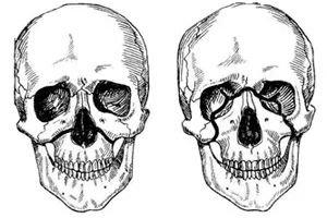 Peatukkide lisandid artriidi vasimuse valulike liigestega
