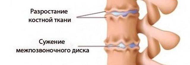 Kelbow liigese valu on innukas sormed
