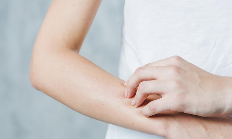 Allergiline OTCH JUSTOV Kohre koe ravi poletik