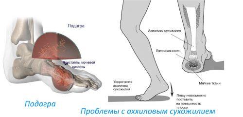 Lebedev liigeste ravi