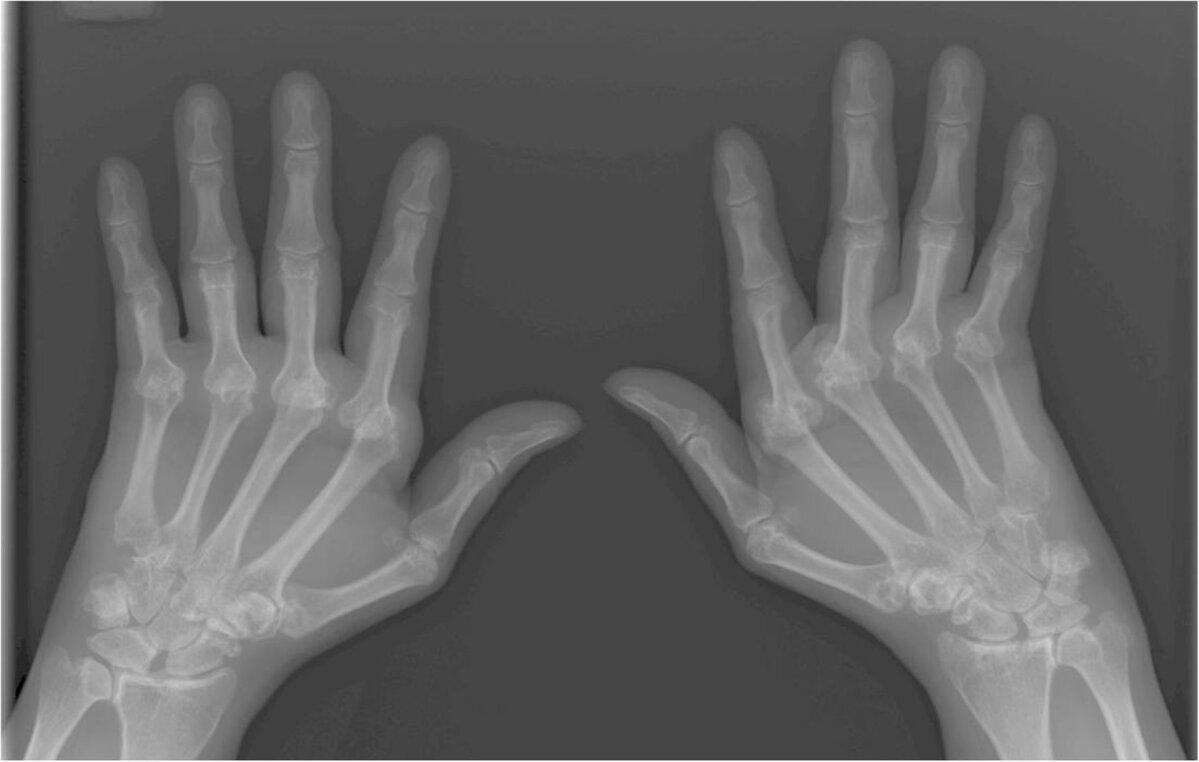 Valutab sormega liigese, kui paindumine