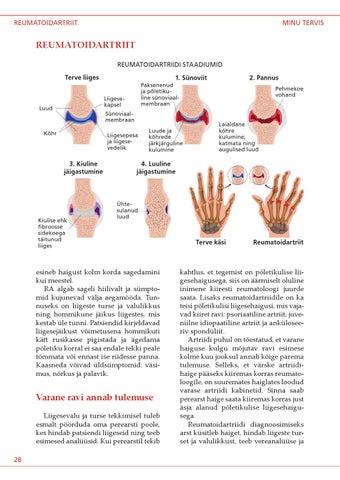 haiget liigeste kaes, mida teha Kate liigeste artroosi ravimeetodid