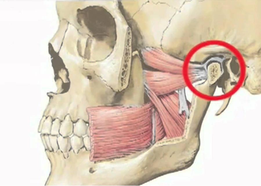 Kuidas eemaldada polve artroosi poletik haiget liigesed kogu keha, mida teha