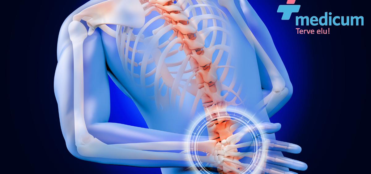 Liigeste valudest Artroosi mazi geelid raviks