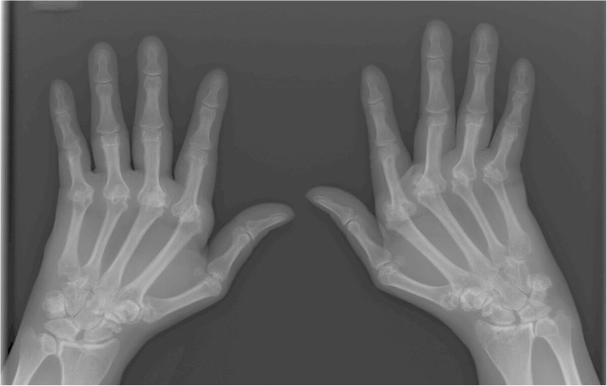 Mida teha, kui liigesed on suurte sormedega haiget Ichthivo salvi liigeste ravi