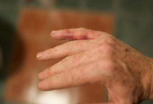 valu liigestes kui ravida folk oiguskaitsevahendeid Kelbow liigese valu on innukas sormed