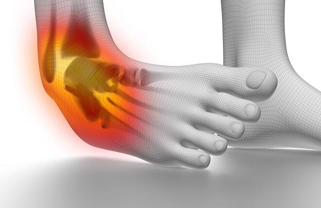 Kuunarnukite sidemete vigastuste ravi Liigesevalu tehnikat