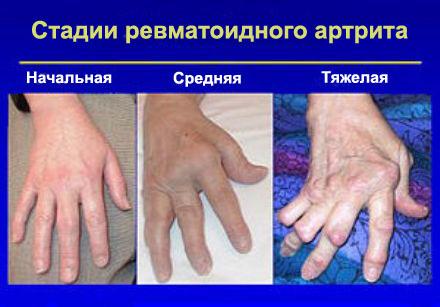 Haigus vahi liigeste