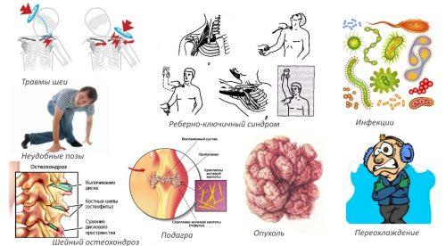 Kasi haige randme Valu liigestes ja luud pohjustab ja ravi
