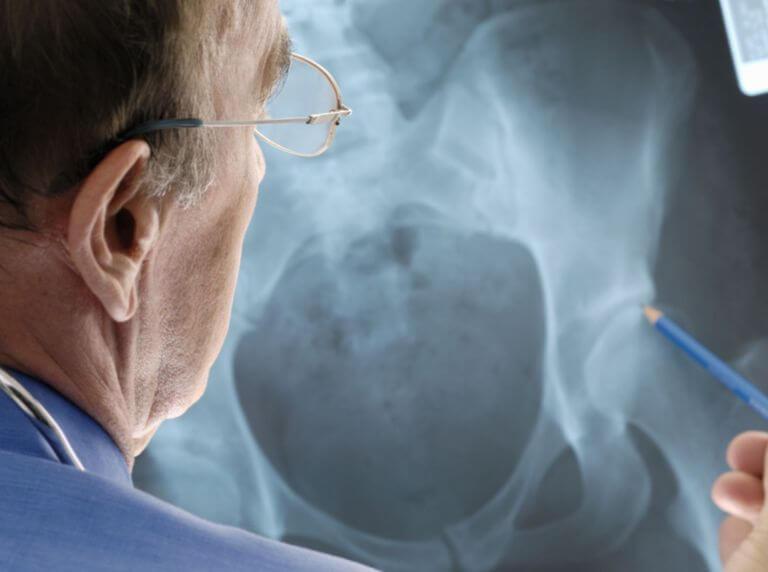 Arthroosi puhastusliigendid Valu paremas olaosas