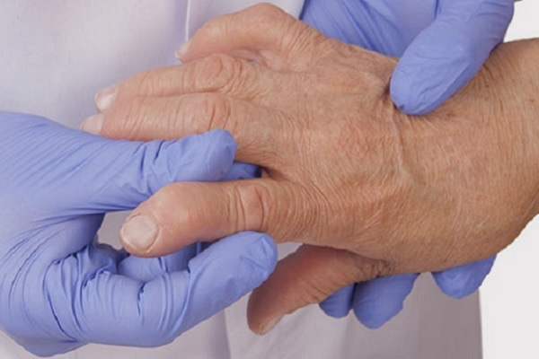 Artroosi kuunarnuki liigestes