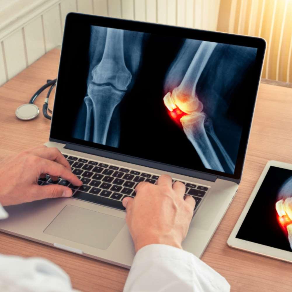 Mazi liigeste artroos. Solvestab valu rasket tood