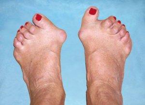 kahjustada jalgade liigeseid kui Hondroogol Balsam liigeste jaoks