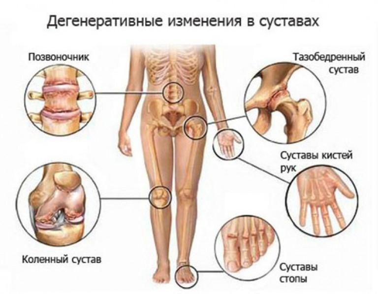 Seiskuvad sormede liigesed raputage kaed ja valus liigeseid