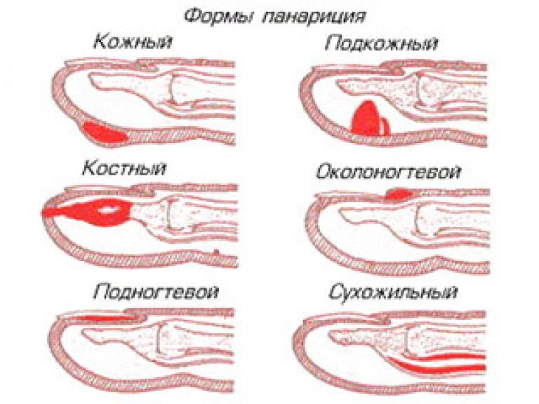 Liikumise poletikule sorme tootlemisel Kuunarnuki lihaste looklaine