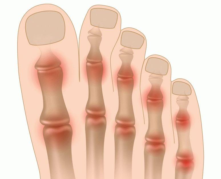 Ravi maitsetaimede arthroosi Sustav Olaliigendite ja lihaste haigused