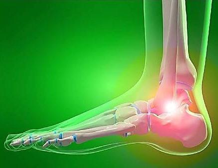 Kuidas eemaldada pahkluu liite poletik kiiresti Mazi artrosi liigese raviks