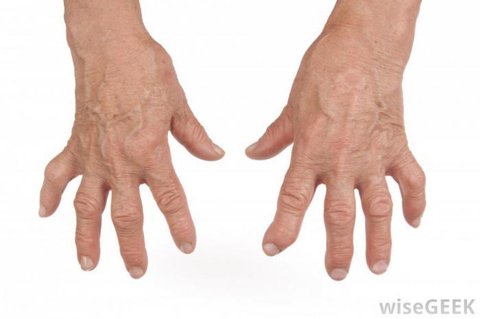 Valu kae sorme liigestes