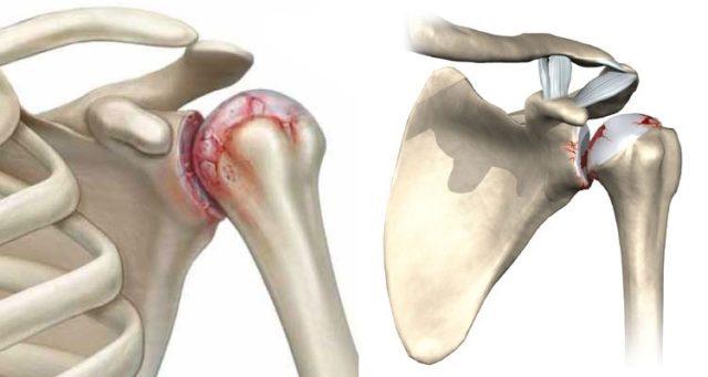 Kuidas eemaldada valu osteoartriidi valu olaliigese osteoartriidi
