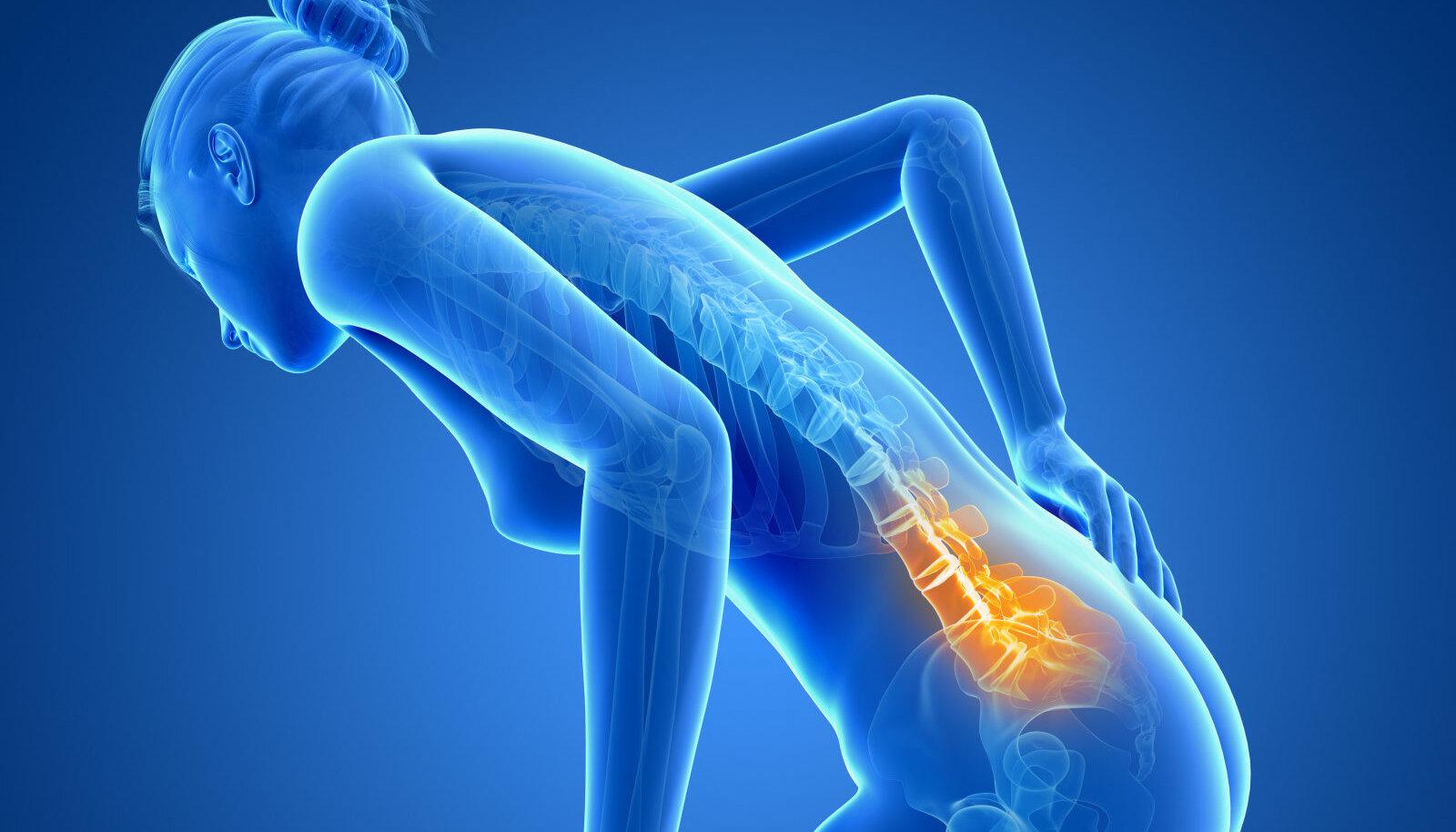 Osteokondrose oksay Turse eemaldamiseks