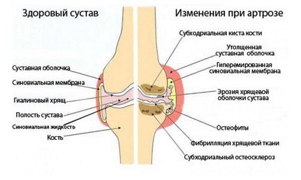 Valu polveliigese parast tootamist kui ravida Ola liigese ja ujumise artroos