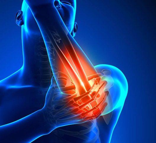 Laserravi ola liigese artroosis