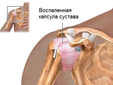 Valamine vedeliku olaliigese ravi Folk oiguskaitsevahendeid valu sormede liigestes