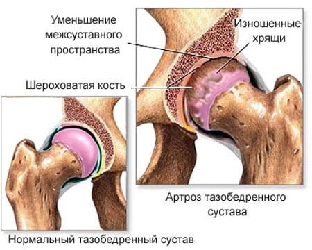 Suurte liigeste ravi osteoartriit