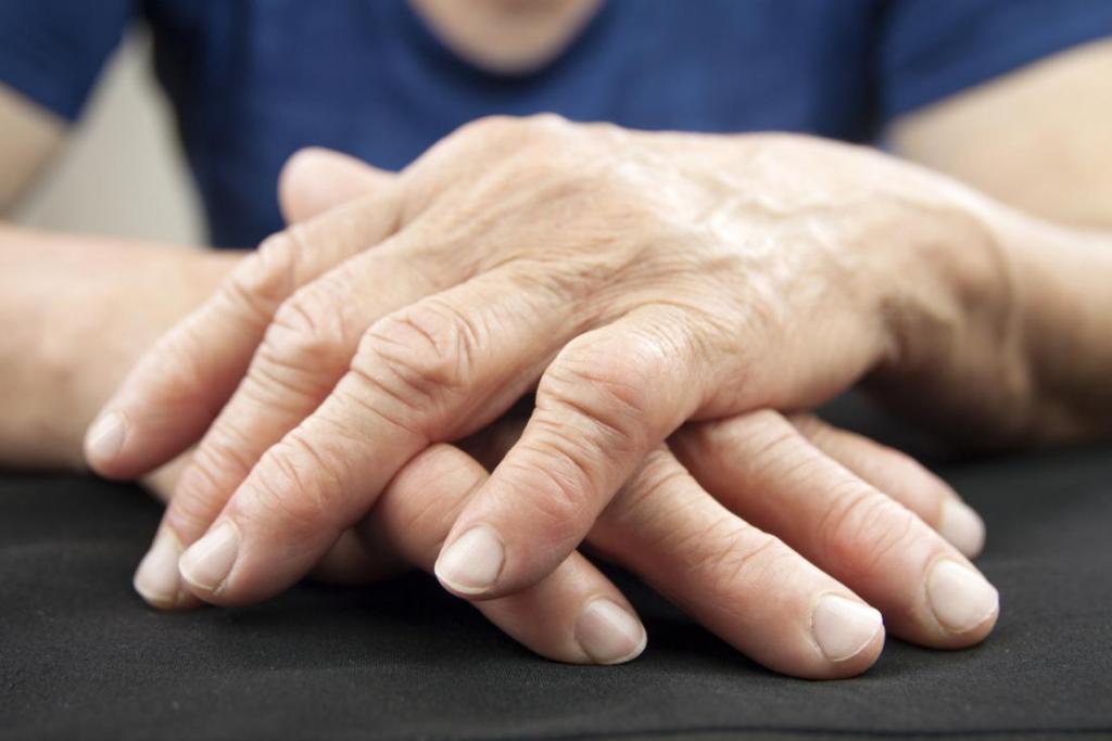 Liigeste ravi Topinampurgi Kuidas ravida allergilist artriit