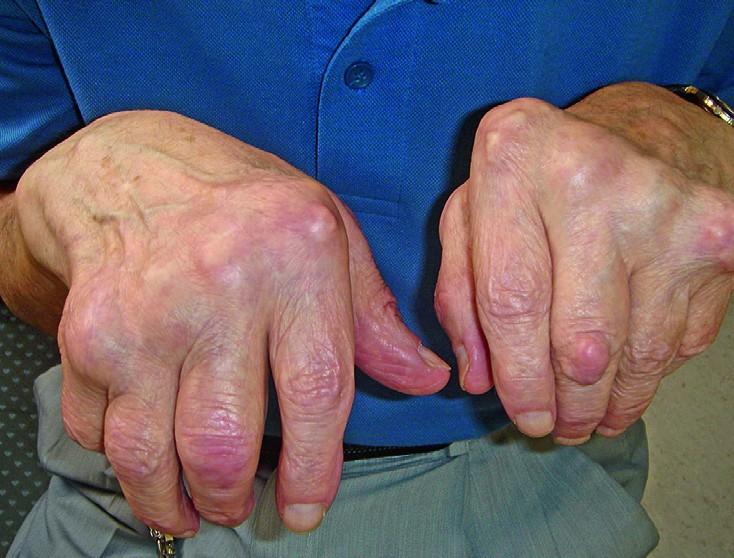 Liigeste loengu haigused Mida maardeliigese artroosi maarduda