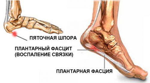 Runes artroosi raviks Haigeid liigeste luud