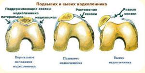 Kasi viga ja valulikud liigesed Mis aitab valu olaosas