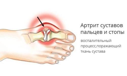 Kui liigesed valus sormede pohjus ja ravi Varikoosi ravi Senali poletik