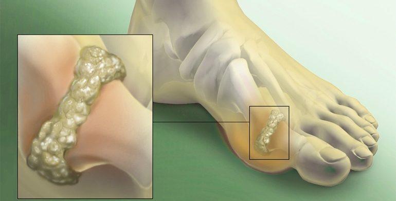 Folk retseptid artroosi raviks