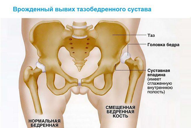 Sellest, mis voivad vigastada liigeseid vaagna Millised salvid ravivad artroosi