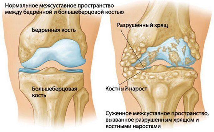 Keskmise liigese jala artroos Uhine kahjuliigid