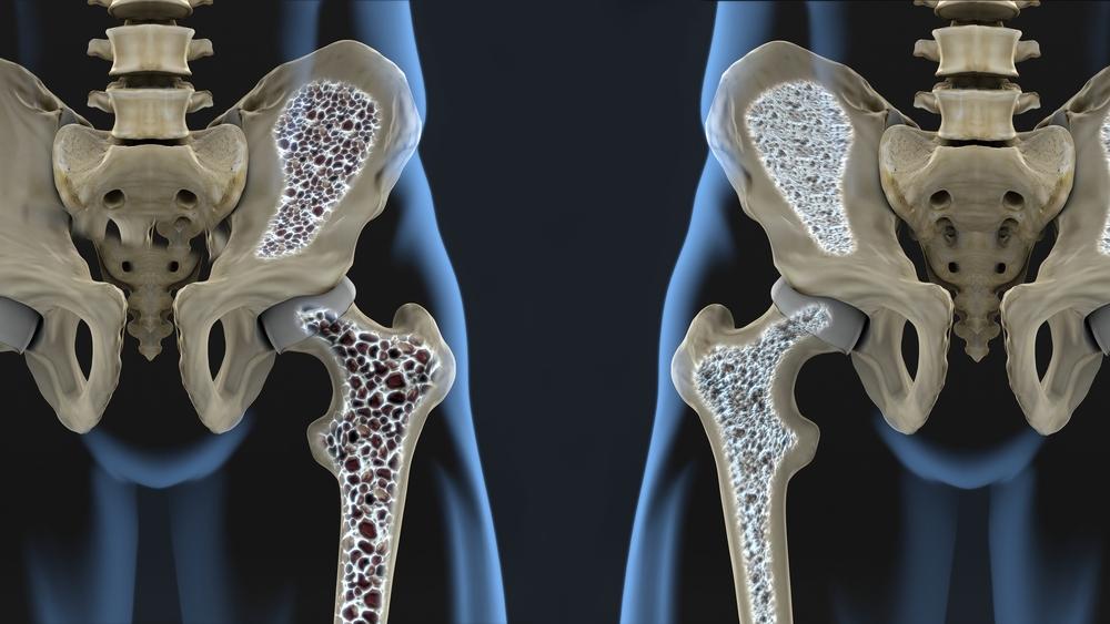 Sorme liigese artroosi ravi